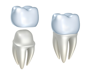 Dental Crowns Diagram